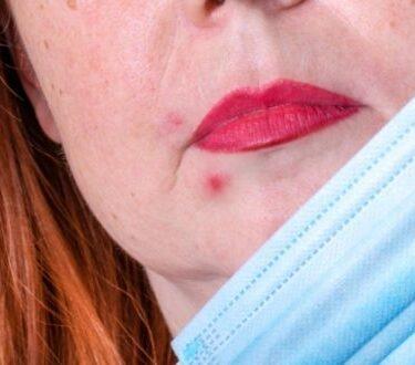 Τι είναι το Maskne; και ποιες οι επιπτώσεις της πανδημίας στο δέρμα μας; - BORO από την ΑΝΝΑ ΔΡΟΥΖΑ