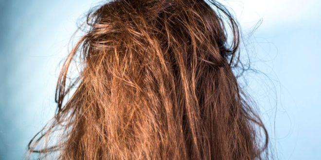 Πες τέλος στη λιπαρότητα των μαλλιών, ανακαλύπτοντας 5 τρόπους αντιμετώπισης - BORO από την ΑΝΝΑ ΔΡΟΥΖΑ